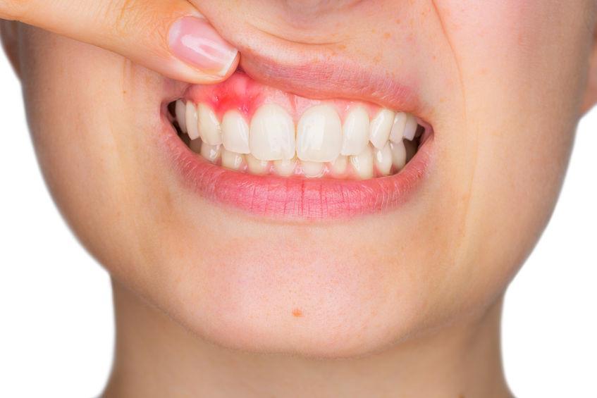 Come far passare il mal di denti: cause e rimedi naturali