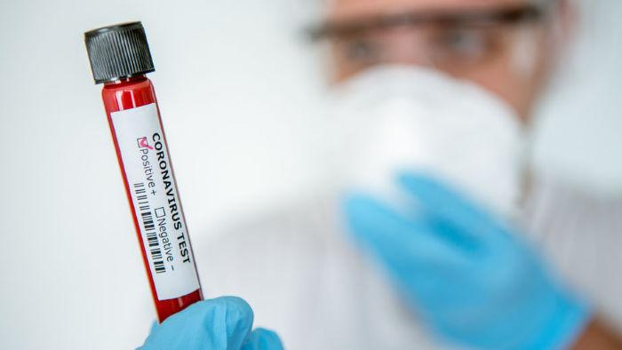 Test Sierologico Per Covid 19 Cure Naturali It
